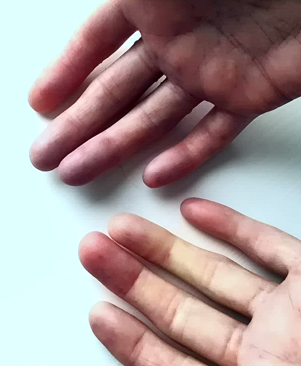 Picture of fingers turning white blue and red from Raynaud's Phenomenon episode
